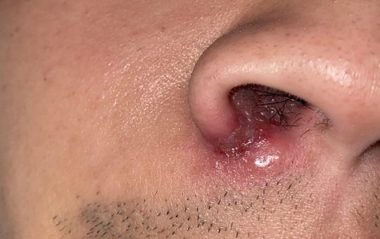 How Do I Get Rid Of A Sore Inside My Nose That Do Not Heal On Its Own